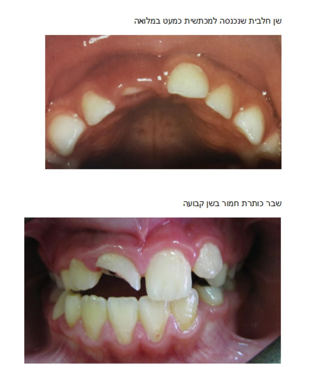 חבלה בשיניים אצל ילדים